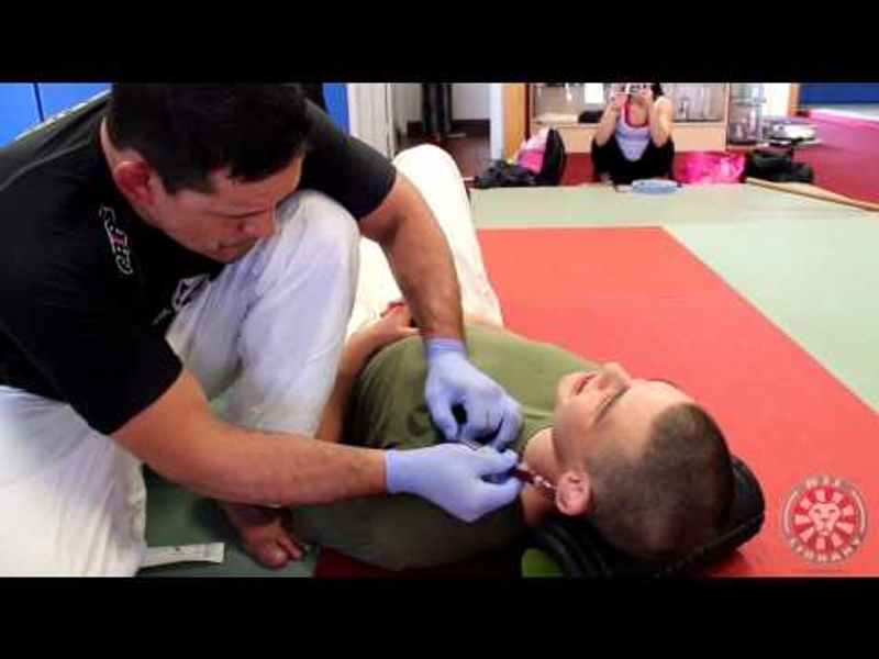 BJJ: Saulo Ribeiro shows how to drain the cauliflower ear